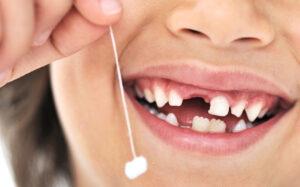 Dhëmbët e qumështit tek femijët
